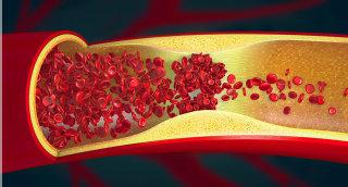 Arteriosklerose kann sich wieder zurückbilden